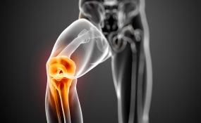 Основной международный протокол лечения артроза коленного сустава