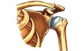 Артрит плечевого и плечелопаточного сустава