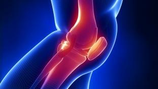 Применение гомеопатии при артрозе коленного сустава
