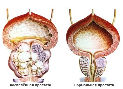Предстательная железа у мужчин узи видео