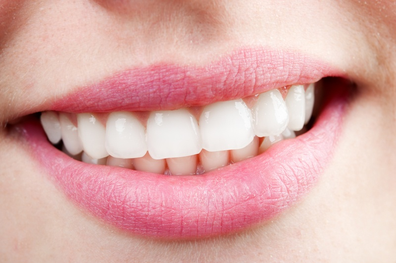Отбеливание зубов в Беларуси — Стоимость, средства и