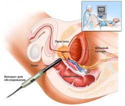 Лучевая терапия в лечении рака простаты