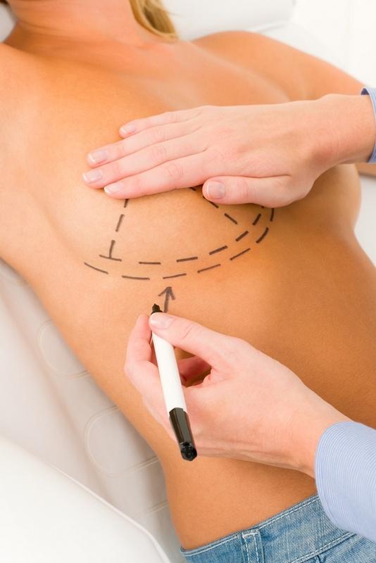 швы после увеличения грудины за 3 дня