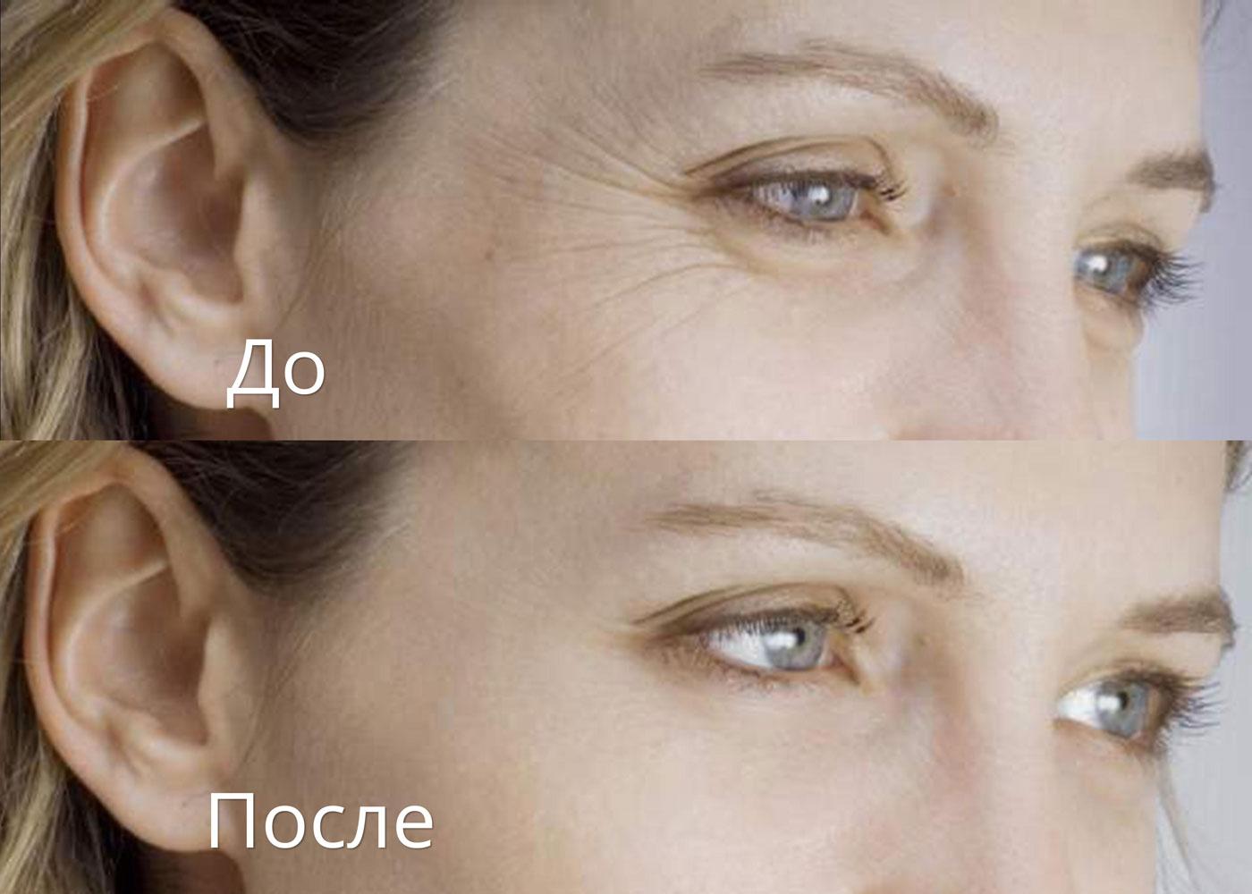 какой препарат эффективнее для похудения