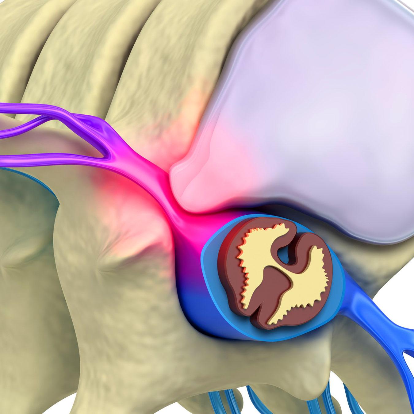 Лечение переломов ключицы у детей