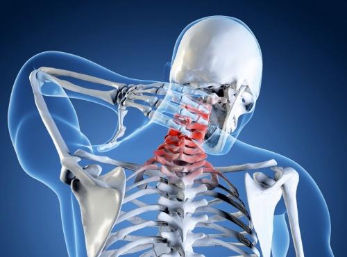 Протрузии шейного отдела позвоночника лечение