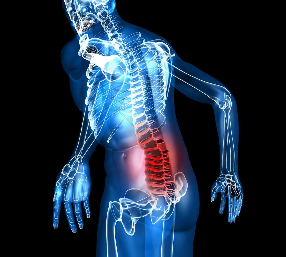 Лечение остеохондроза пояснично-крестцового отдела позвоночника ...