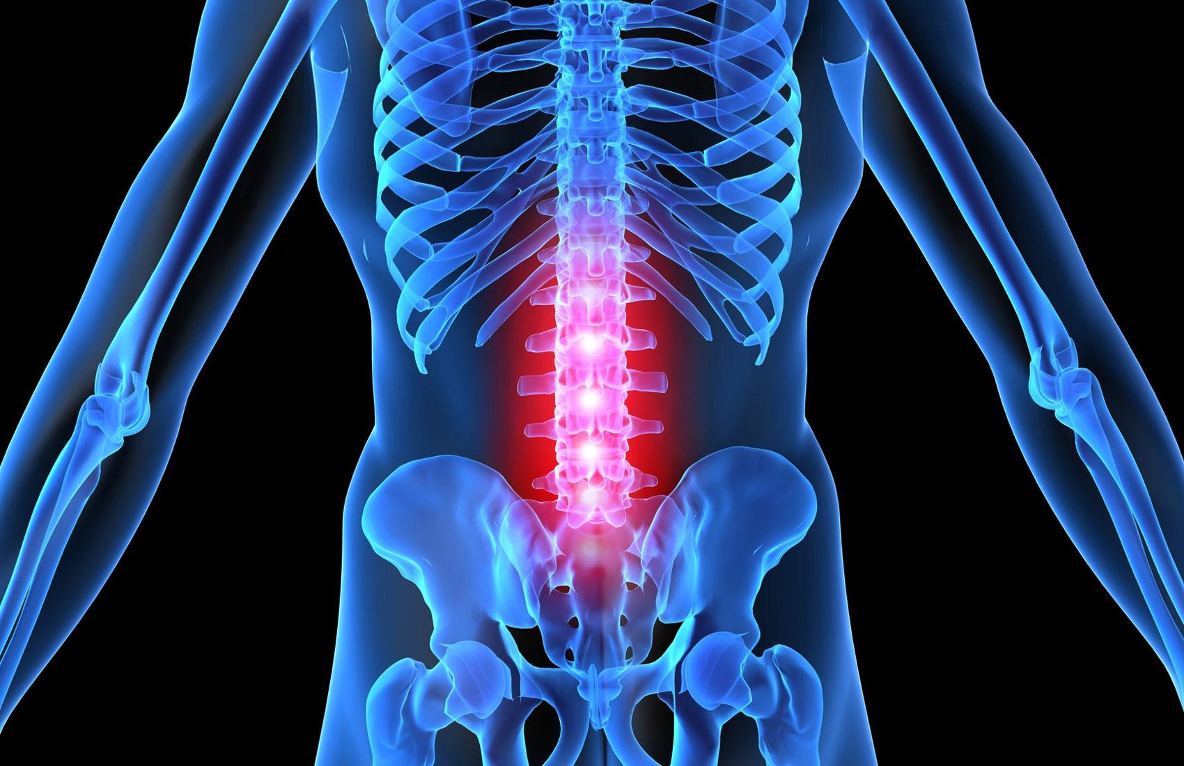 Лечение надорвал спину