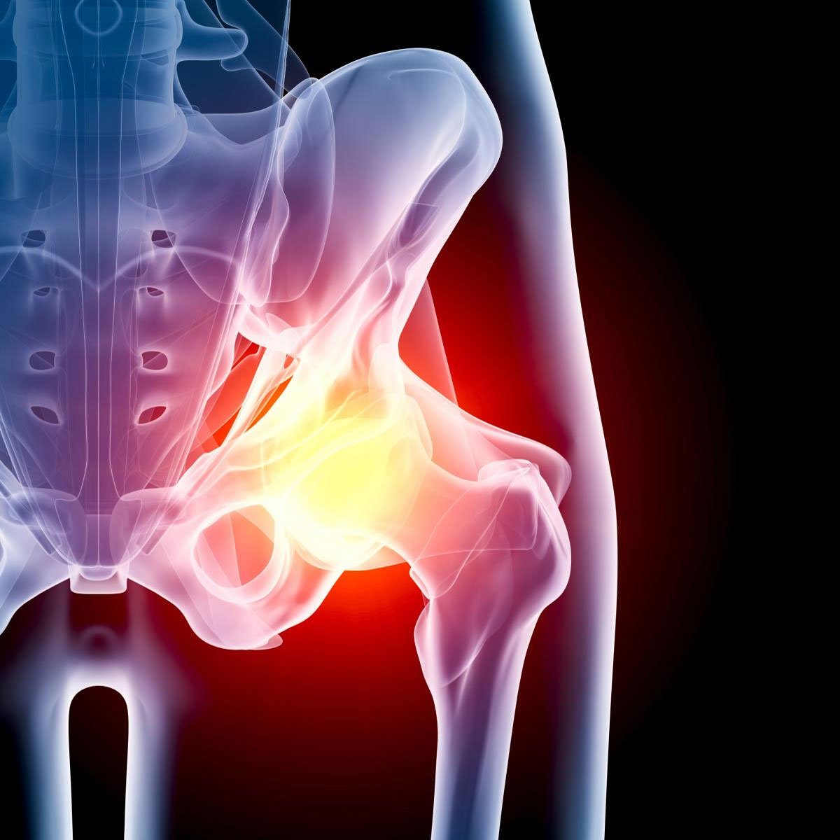 Остеохондроз боли тазобедренного сустава лечение