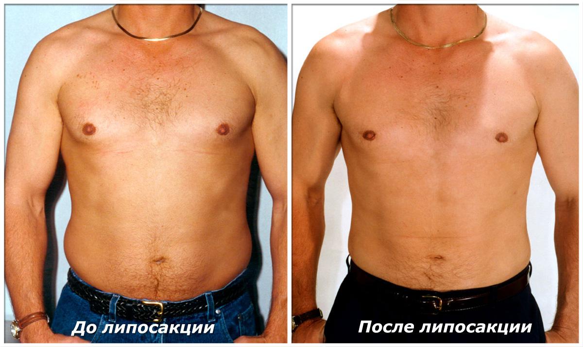 способ похудеть за неделю на 10 кг