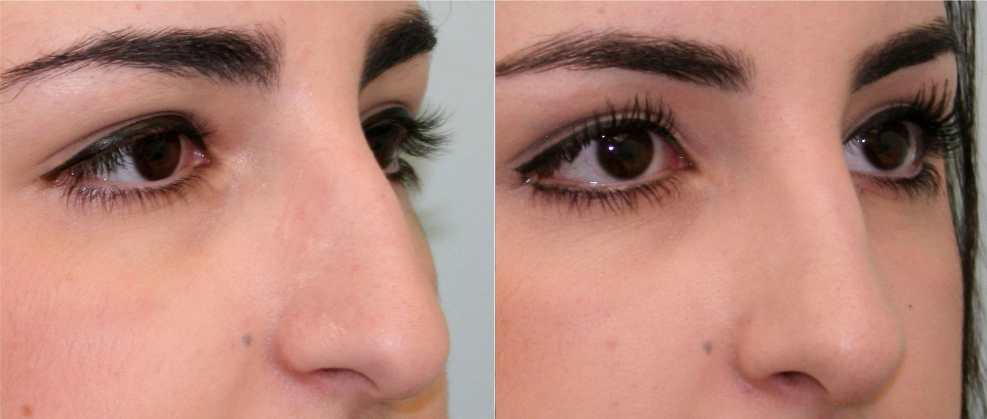 Перегородка носа