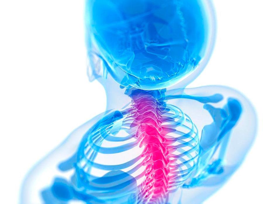 Полисегментарный остеохондроз - что это такое, симптомы, лечение