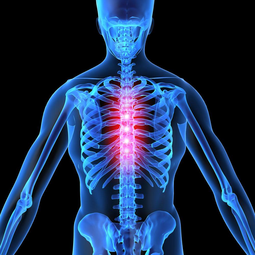 Лечение остеохондроза грудного отдела позвоночника, как лечить и ...