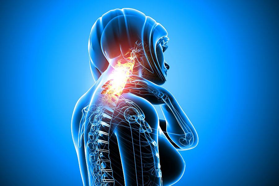 Остеохондроз шейного отдела - лечение, причины и симптомы