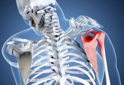 Сильные боли в спине бока и позвоночника