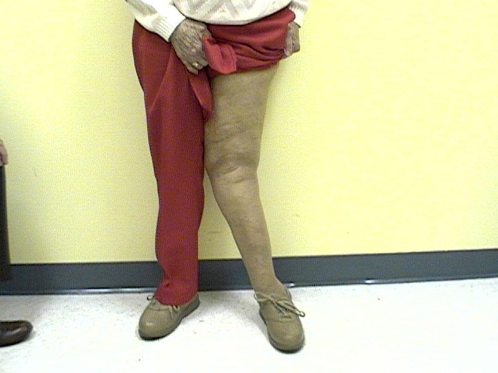 Деформирующий артроз коленного сустава, лечение, причины, симптомы