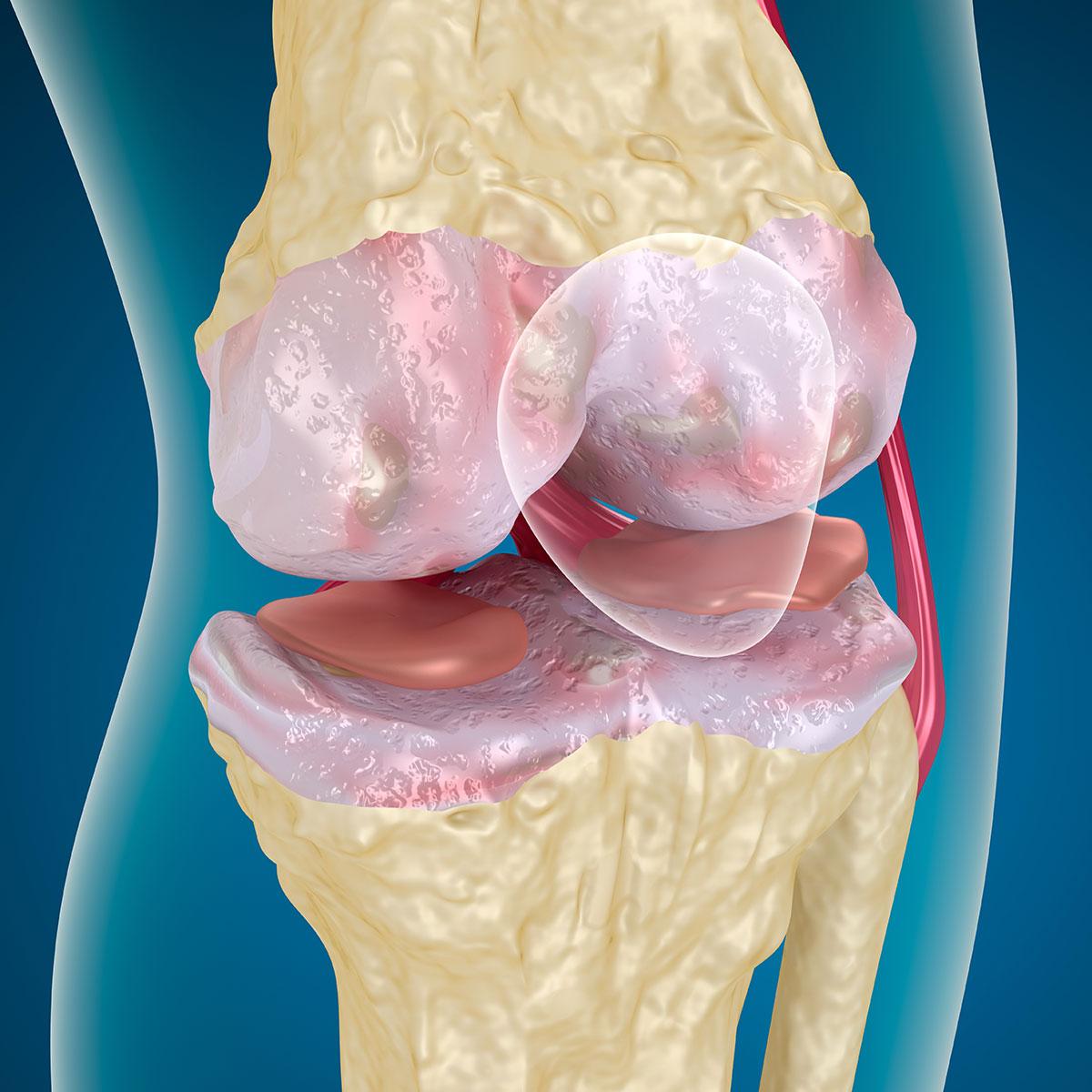 Как лечить сухожилия суставов