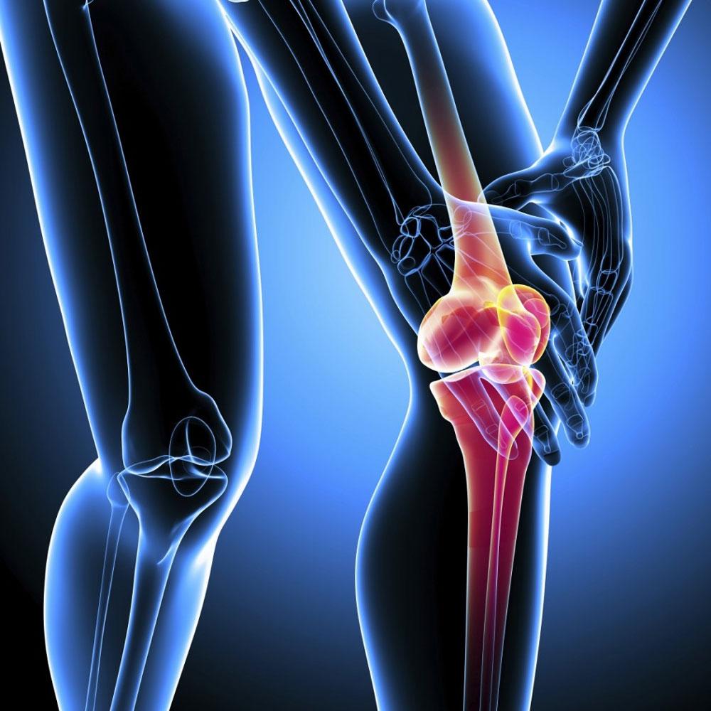 Артроз и артрит коленного сустава, симптомы и чем отличаются ...