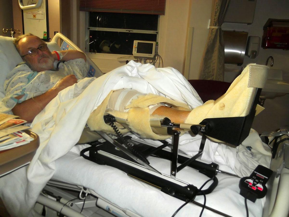 Протез на коленный сустав при артрозе