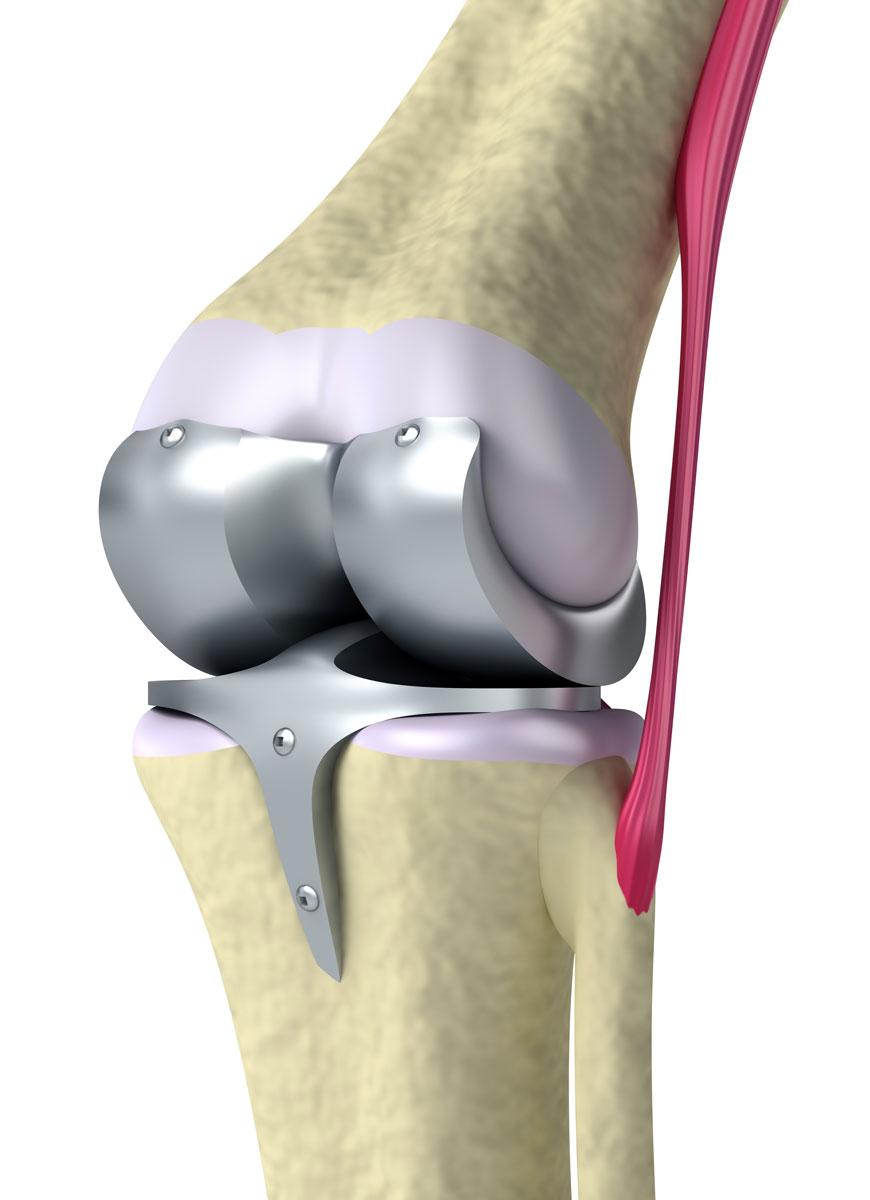 гонартроз коленного сустава видео операции