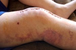 Изображение - Всегда нужна операция при гонартрозе коленных суставов 1417103138_shov-na-kolennom-sustave