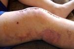 Изображение - Лечение артроза коленного сустава операция 1417103138_shov-na-kolennom-sustave