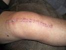 Изображение - Всегда нужна операция при гонартрозе коленных суставов 1417103189_sled-ot-hirurgicheskogo-vmeshatelstva-na-kolene