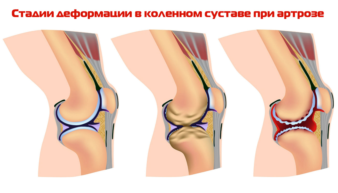Артроз коленного сустава, лечение, симптомы