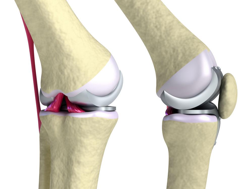 Как лечить артроз и артрит коленных суставов что будет если запустить дисплазию тб сустава у ребенка
