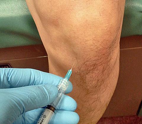 Как делают блокаду коленного сустава при артрозе лфк при разрыве боковых связок коленного сустава