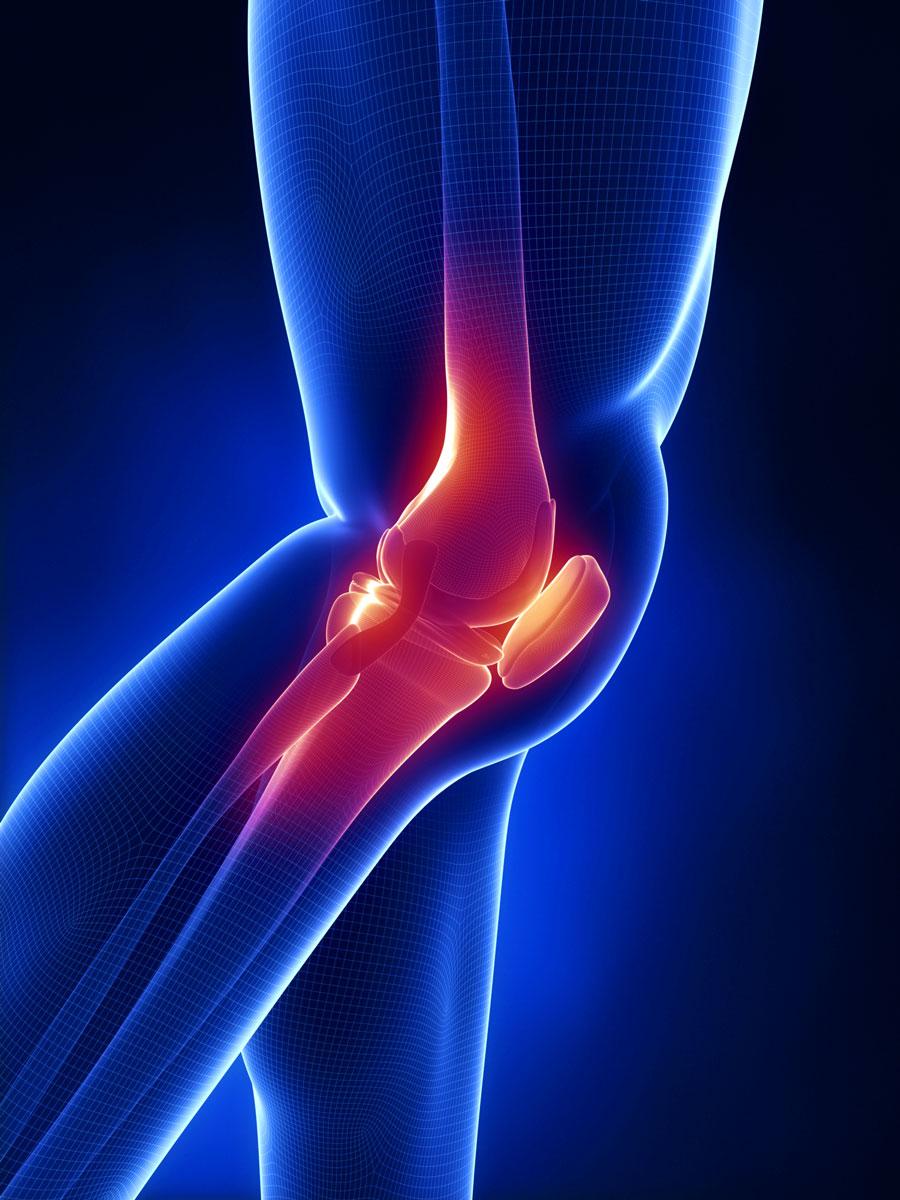 Гомеопатия при артрозе коленного сустава отзывы гомеопатические мази для укрепления суставов