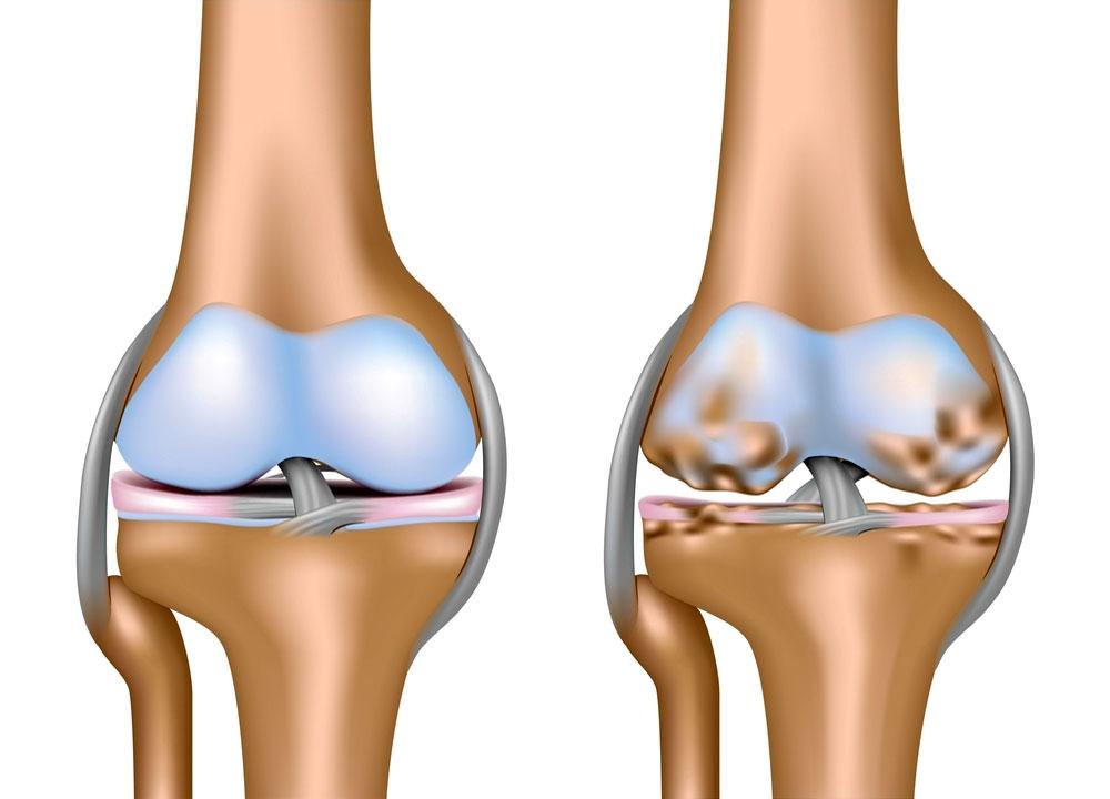 Укол в коленный сустав препарат ферматрон жидкость в коленном суставе способ лечение