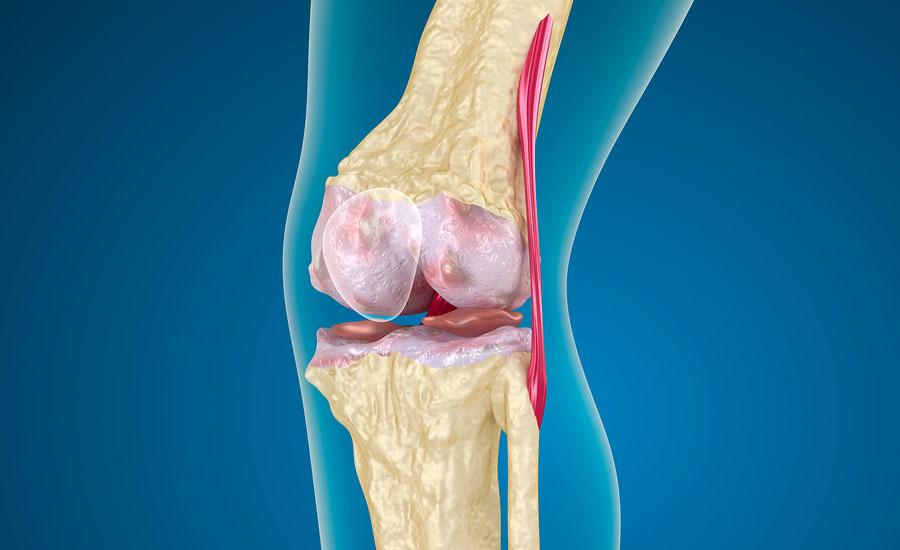 Левосторонний артроз коленного сустава пантогар гель для суставов отрицательные отзывы
