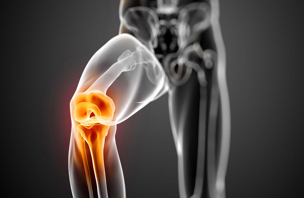 Протокол лечения артроза коленного сустава