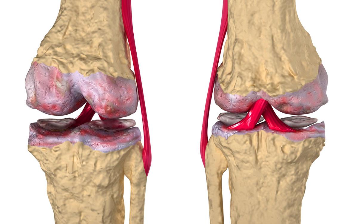 артрит и артроз коленного сустава лечение народными средствами