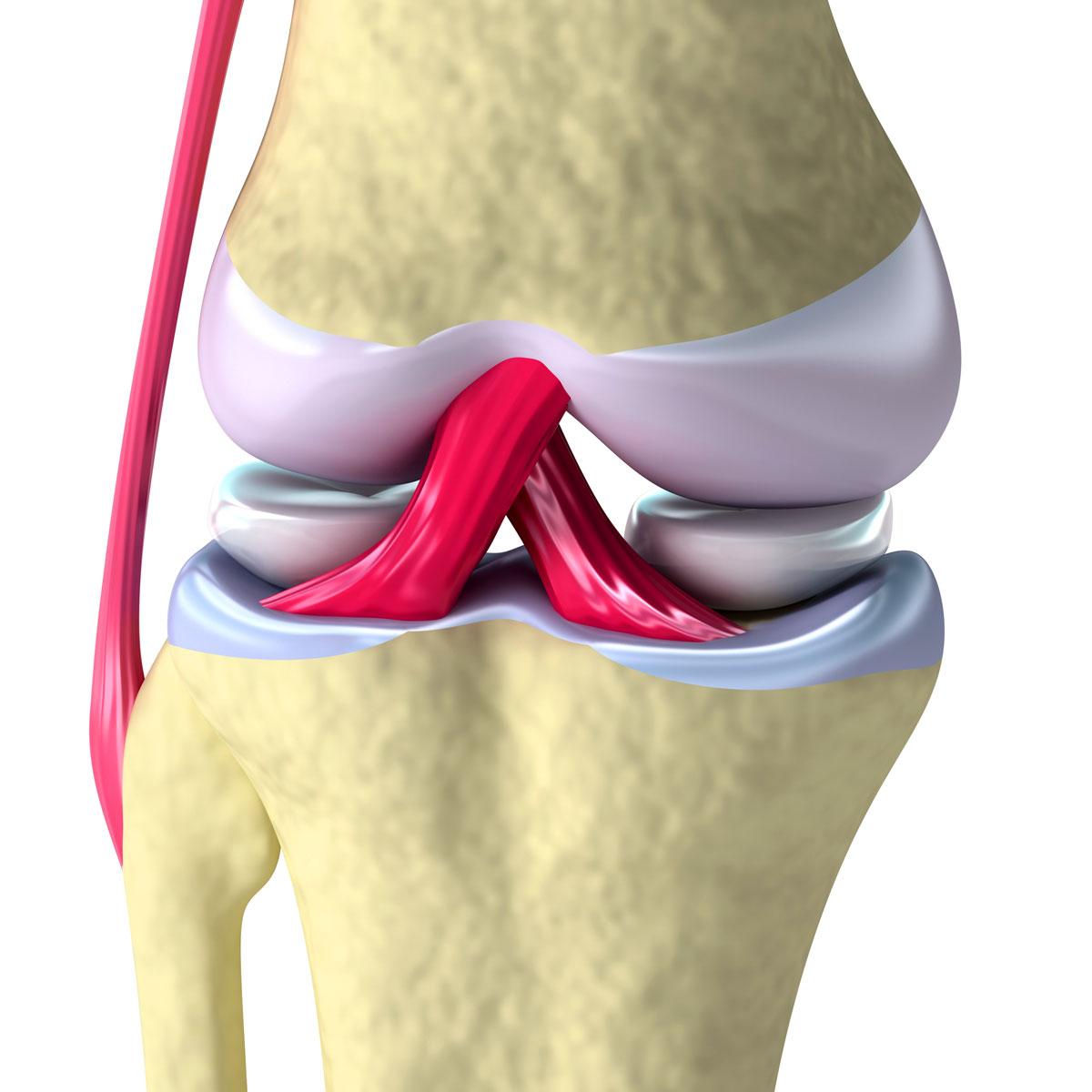 Чем лечить деформирующий артроз коленного сустава народными средствами повреждение сухожилия тазобедреного сустава