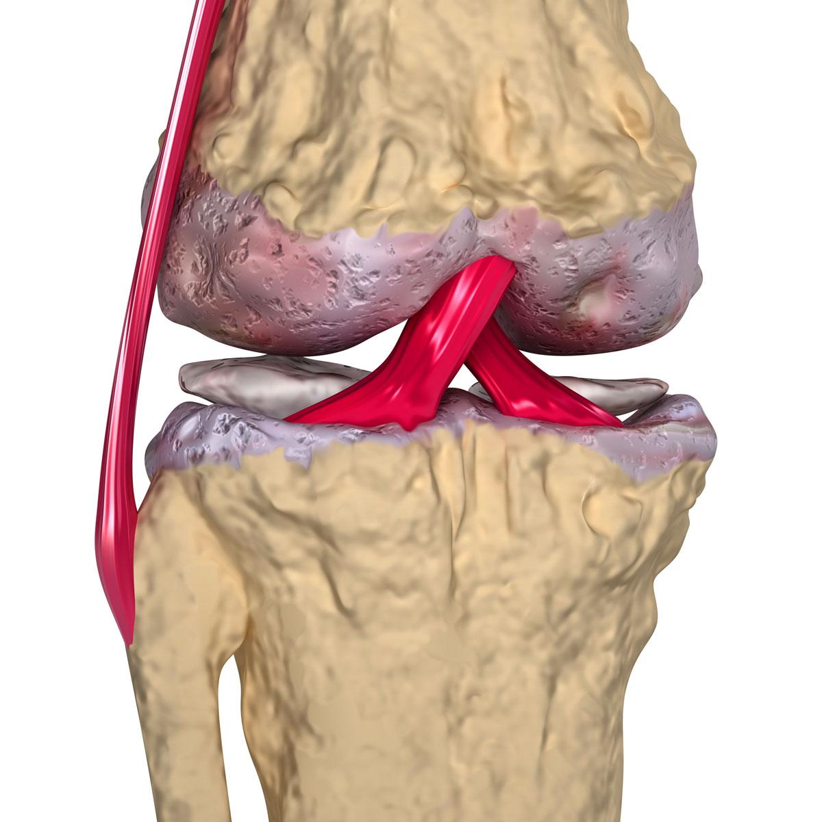 Чем лечить деформирующий артроз коленного сустава народными средствами шишка на тазобедренном суставе у собаки