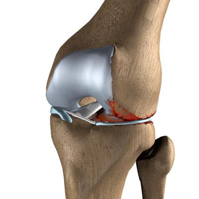 заменить коленный сустав в минске