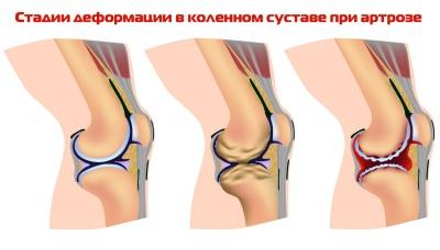 Чем снять отек коленного сустава при артрозе рецепты народной медицины при болях в суставах