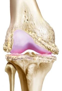 деформированный коленный сустав и кости при артрозе