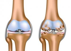 Лекарство от артроза коленного сустава