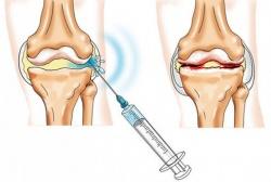 Лекарство от артроза суставов
