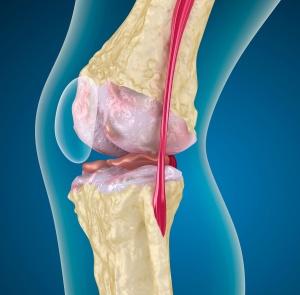 Ревматоидный артрит. Причины, симптомы.