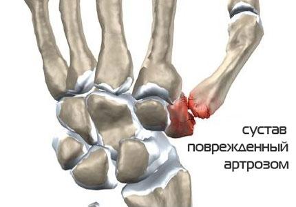 лечение народными средствами болей в суставах пальцев