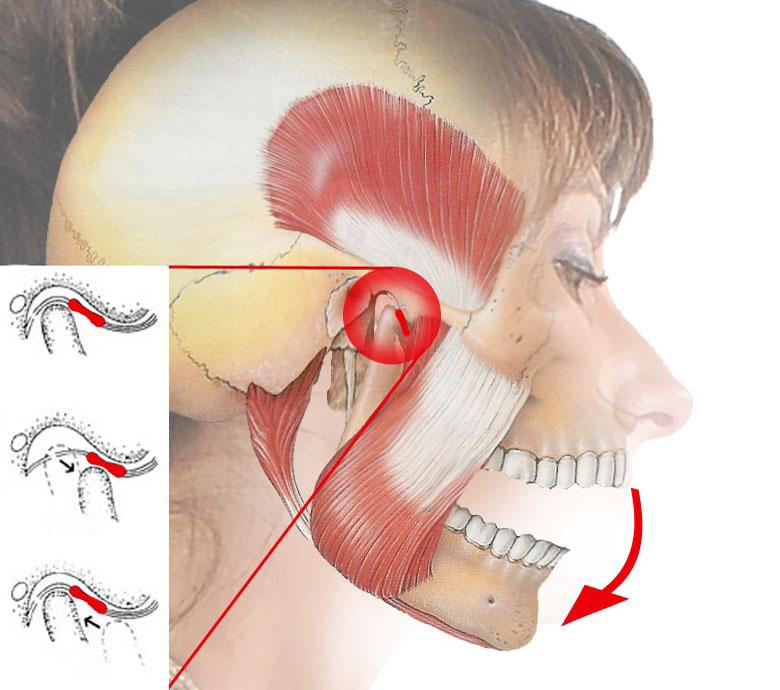 Дисфункция нижнего височно-челюстного сустава лечение остеоартроз 2 степени тазобедренного сустава