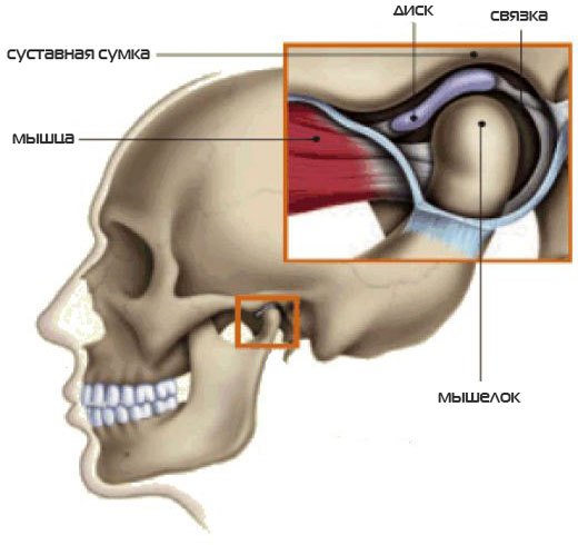 Ложный височно-нижнечелюстной сустав лечение искривление суставов челюсти
