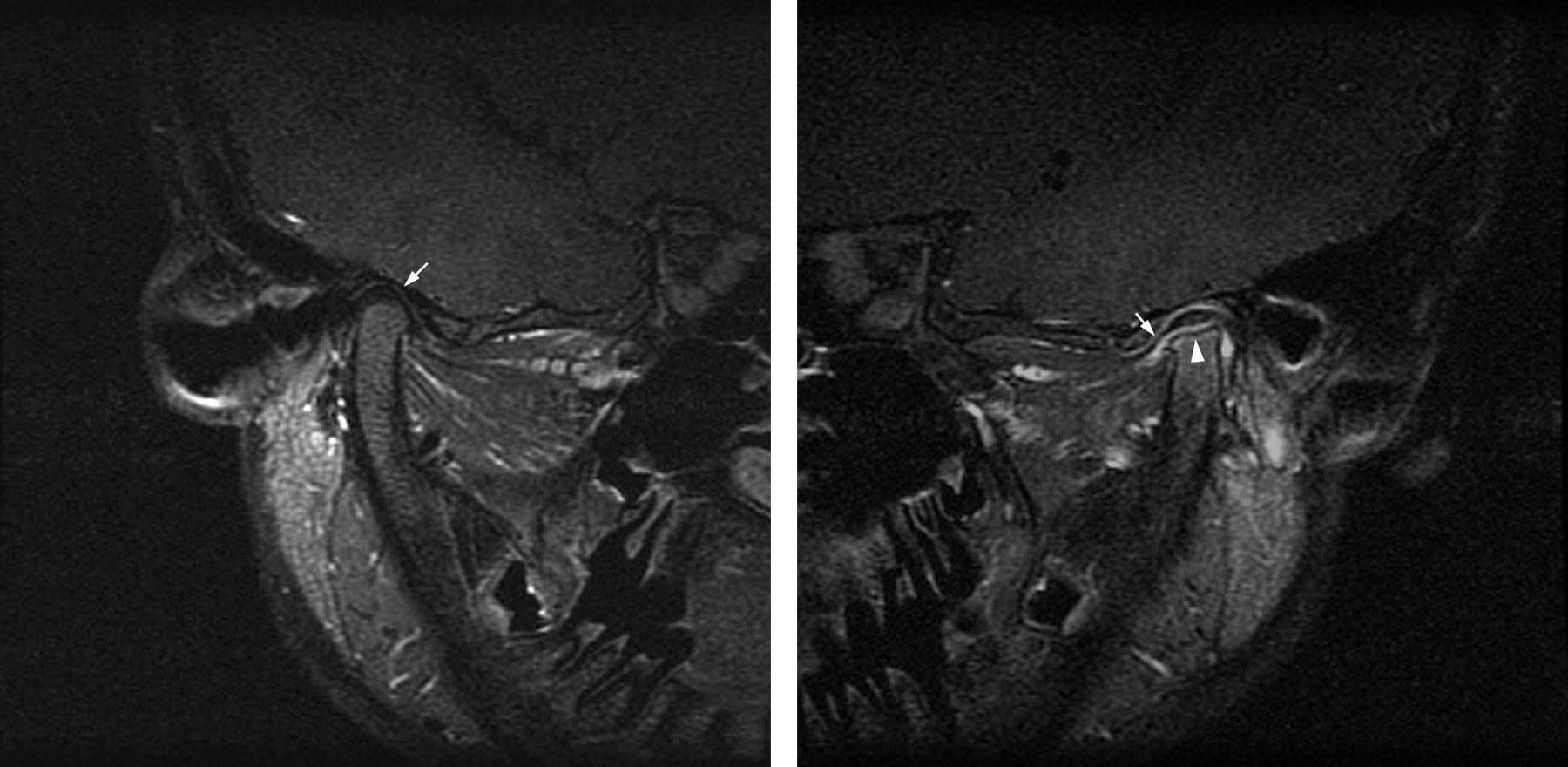 Артроз височно нижнечелюстного сустава (ВНЧС) - симптомы и лечение