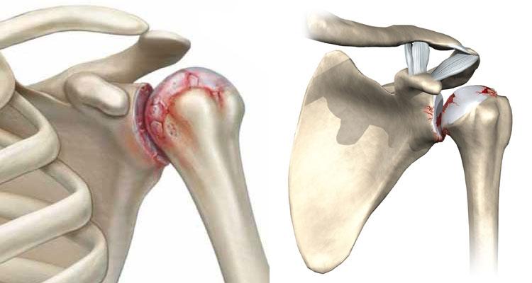 Артроз плечевого сустава - симптоматика и эффективное лечение ...