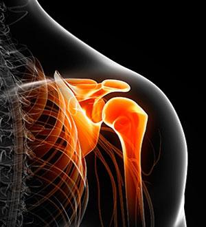 эффективное средство при артрозе плечевого сустава