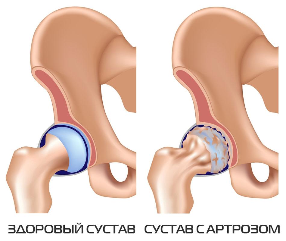 Лечение артроза тазобедренного сустава медикаментозными и ...